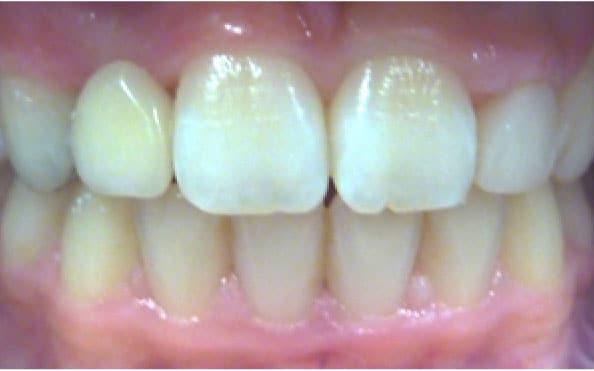 Wingham Dental Practice - bridges