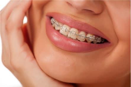 Wingham Dental Practice - braces