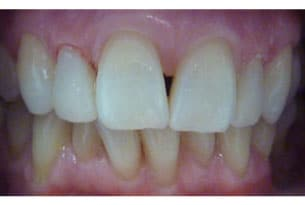 Wingham Dental Practice - veneers