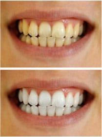 Wingham Dental Practice - whitening